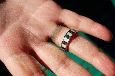 mancha-verde-de-anillo-dedo
